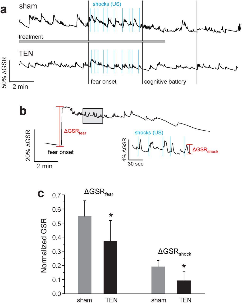 Transdermal neuromodulation of noradrenergic activity suppresses