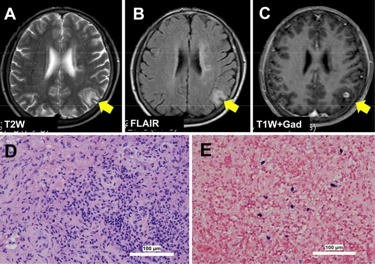 Next-generation sequencing in neuropathological diagnosis of