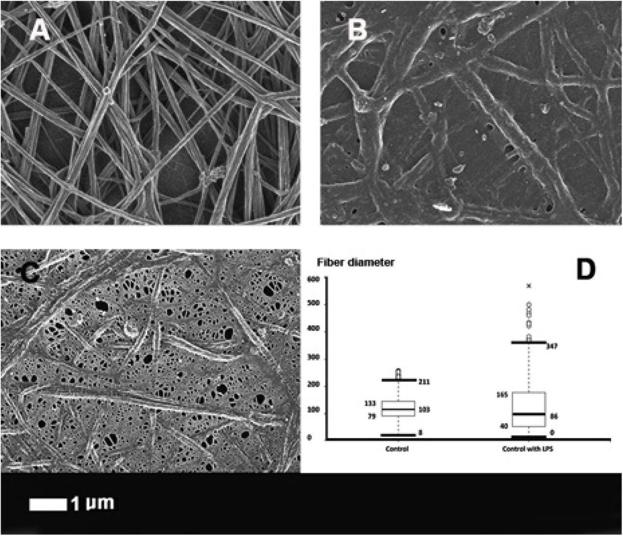 The effect of 0.2 ng.L −1 O111:B4 LPS on the morphology of fibrin fibres in the platelet poor plasma (PPP) of healthy individuals (with added thrombin). A) Healthy fibres; B and C) PPP with added LPS. D) Fibre distribution of the control fibres and of controls with added LPS of 30 individuals. Note: in samples with added LPS there were areas of matted layers with no visible fibres to measure. Fibres were measured using ImageJ as described in Materials and Methods.
