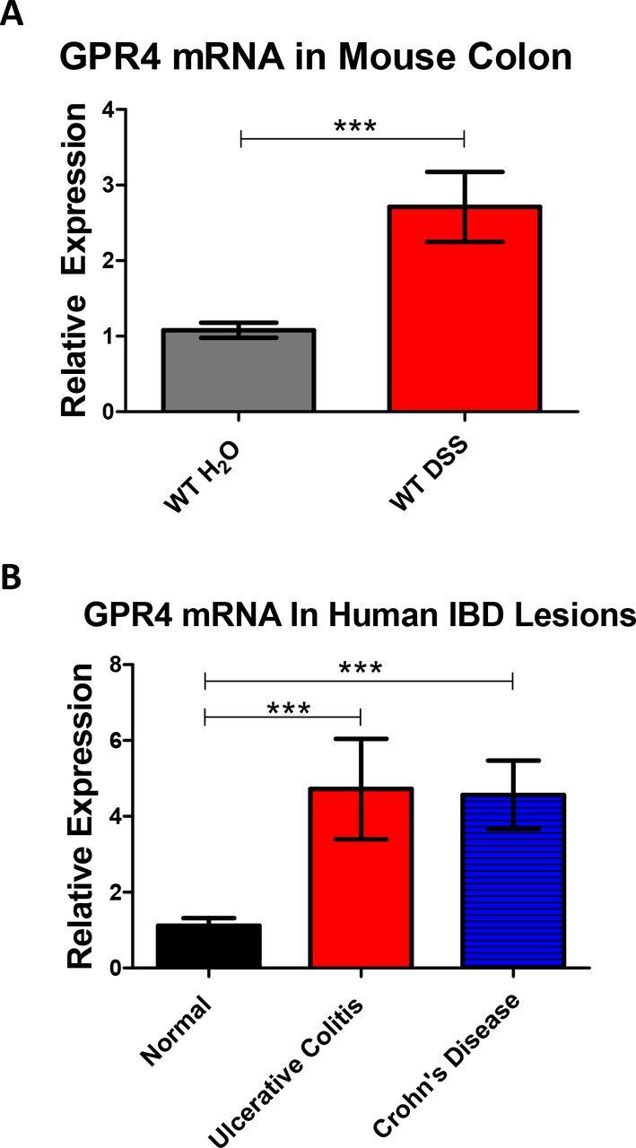 GPR4 Deficiency Alleviates Intestinal Inflammation in a