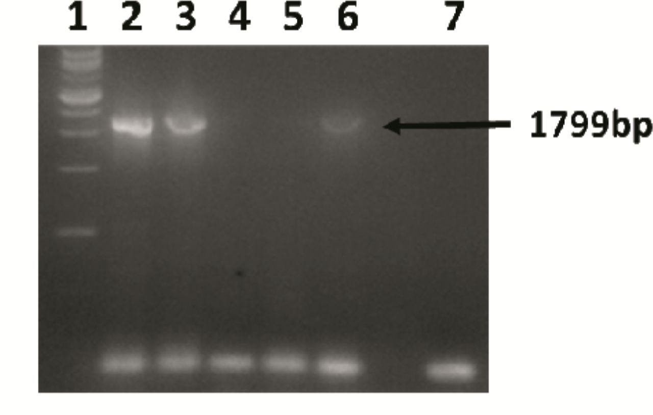 PCR amplification of IL-12b promoter gene. Genomic DNA was incubated in the absence (lanes 2 and 3) or the presence (lanes 4 and 5) of MspJI, and used as template. Positive (lane 6) and negative (lane 7) amplification controls were analyzed in parallel.