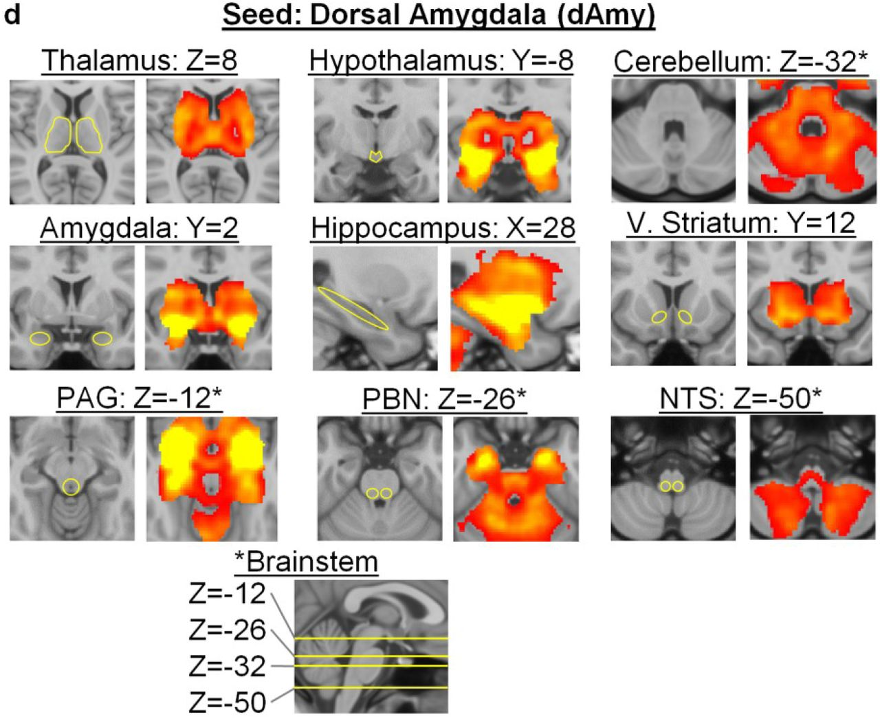 Evidence for a Large-Scale Brain System Supporting Allostasis and