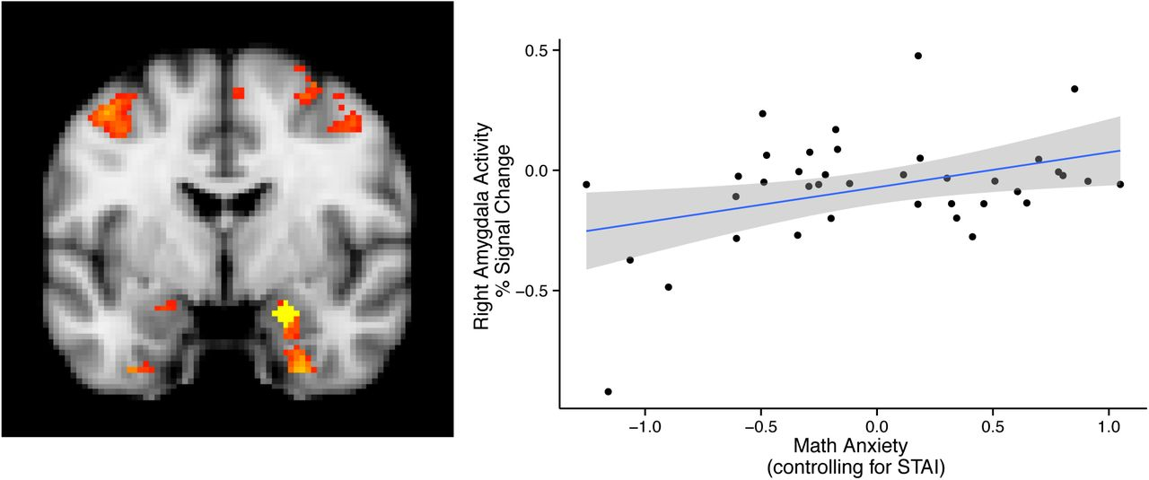 Anxiety May Alter Processing Of >> Avoiding Math On A Rapid Timescale Emotional Responsivity