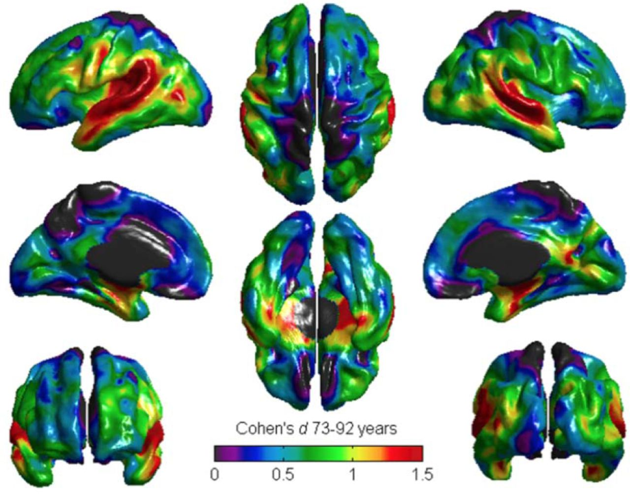 Brain structural differences between 73- and 92-year olds matched