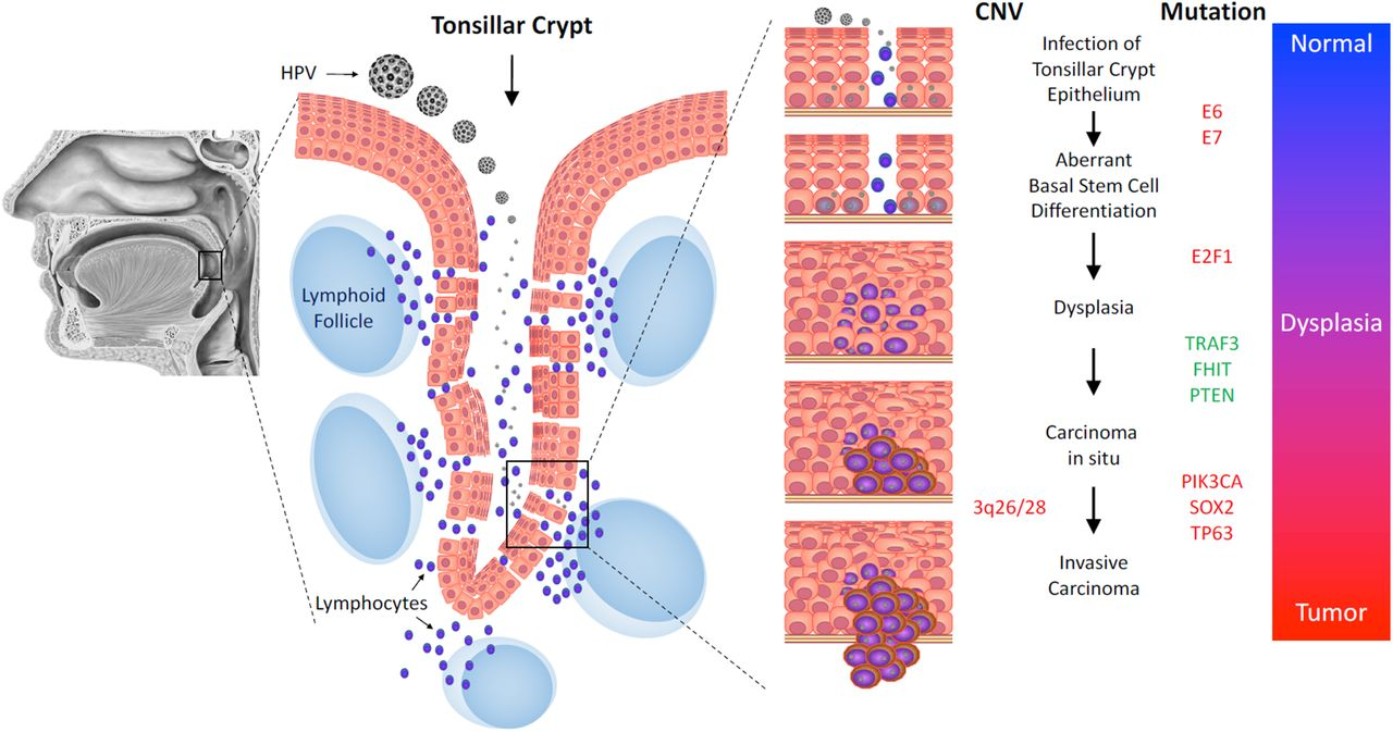 Molecular mechanisms of human papillomavirus-related