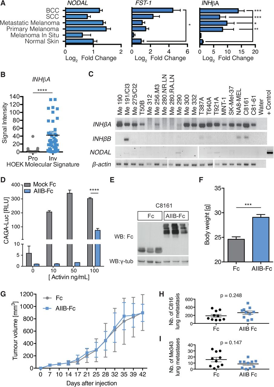 Paracrine Activin-A signaling promotes melanoma growth and