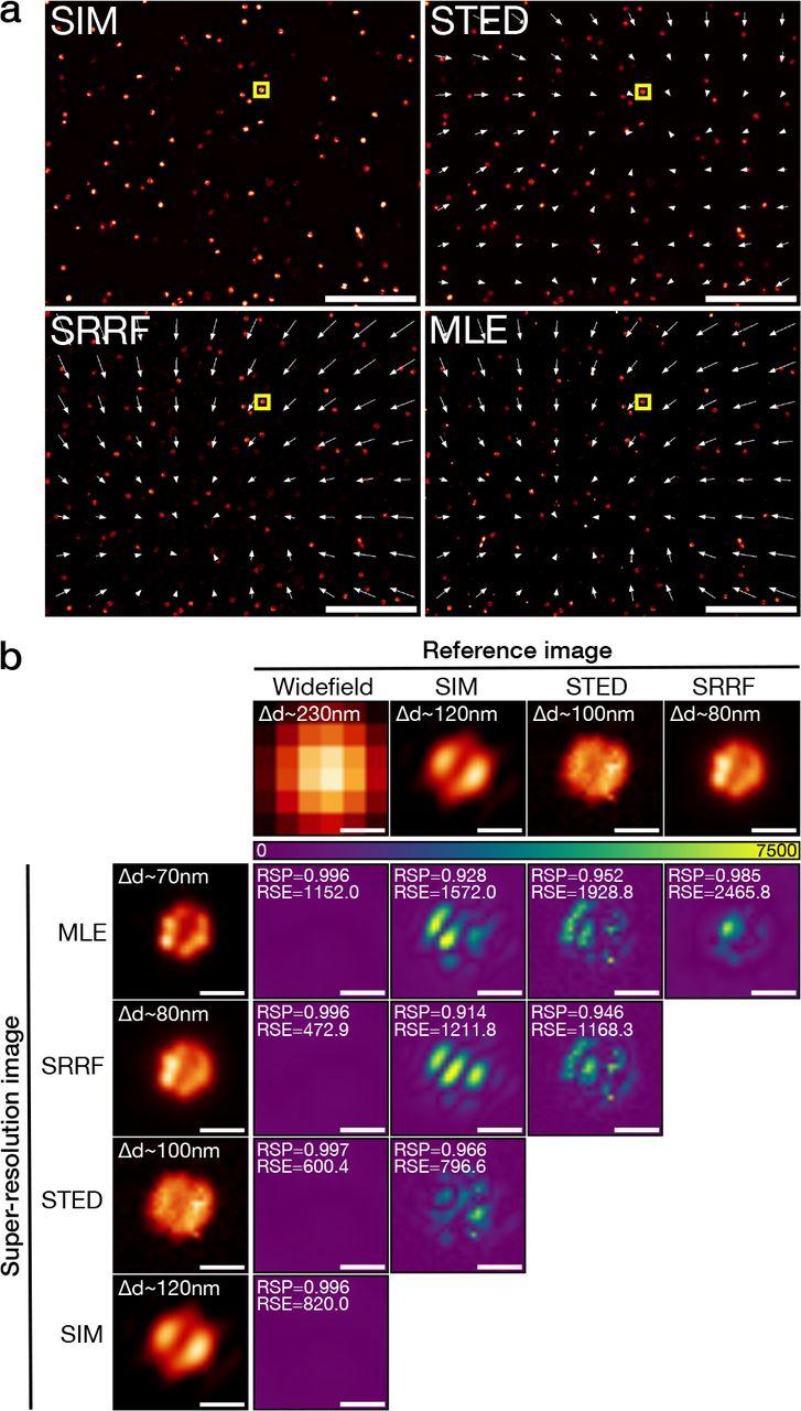 NanoJ-SQUIRREL: quantitative mapping and minimisation of super