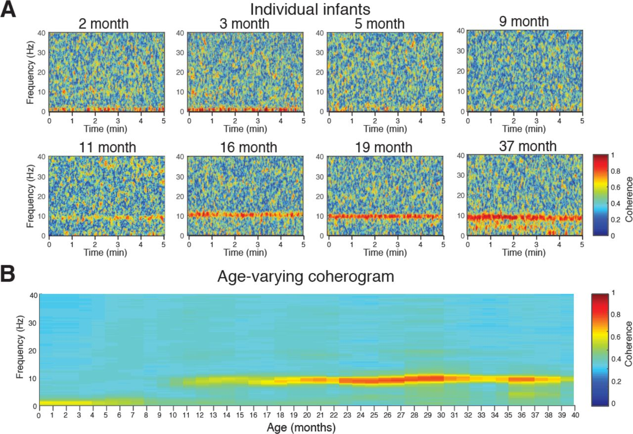 Electroencephalographic markers of brain development during