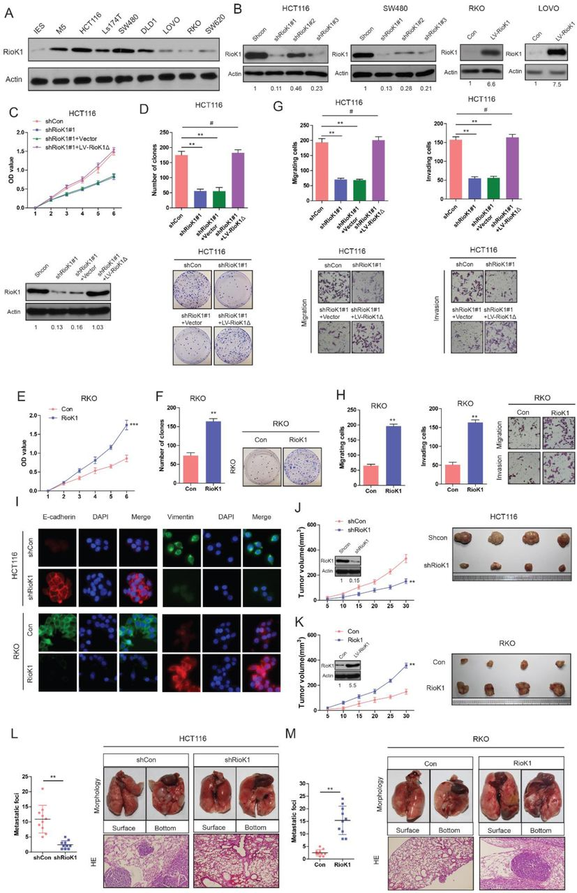 Targeting posttranslational modifications of RioK1 inhibits the