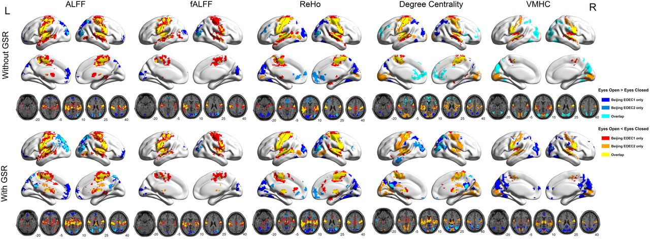 A Comprehensive Assessment of Reproducibility of R-fMRI
