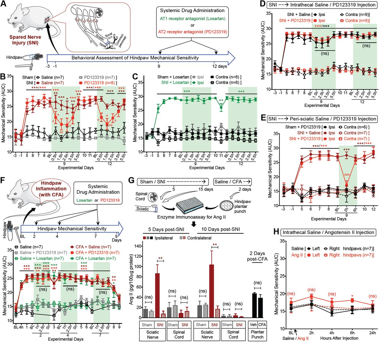 Macrophage-to-sensory neuron crosstalk mediated by Angiotensin II