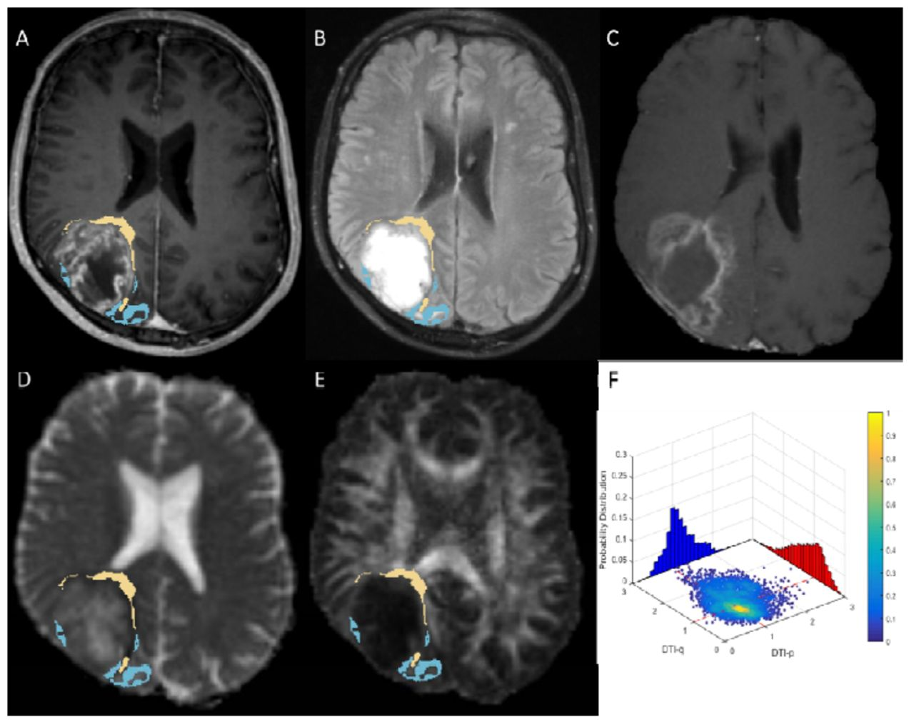 Intratumoral Heterogeneity of Tumor Infiltration of