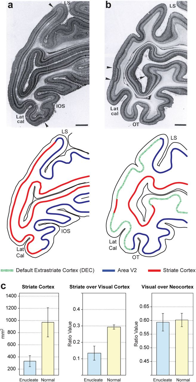 Cortical Connectivity In A Macaque Model Of Congenital Blindness