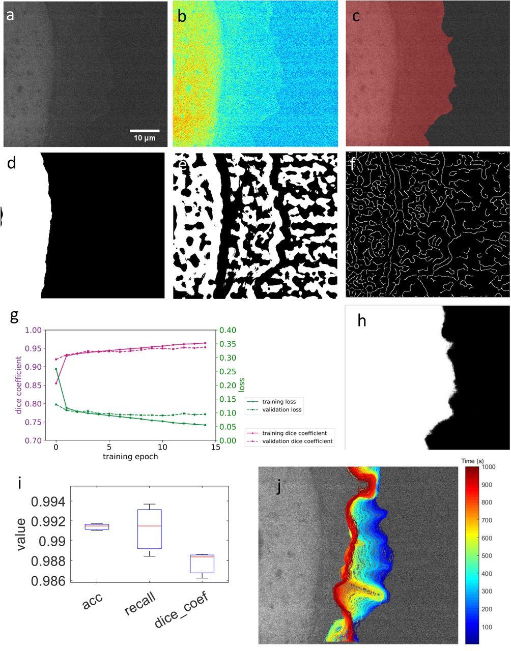 vU-net: accurate cell edge segmentation in time-lapse