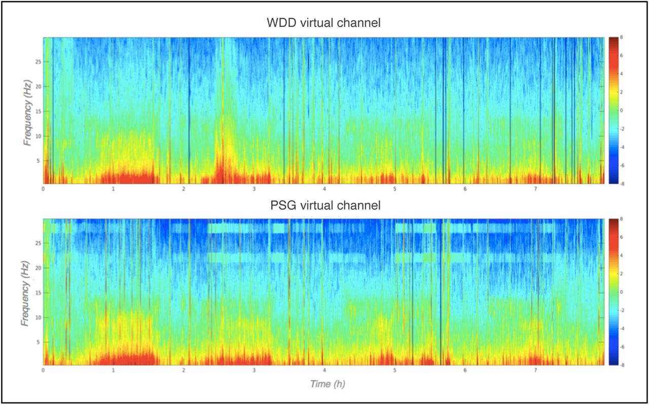 Performance of an Ambulatory DRY-EEG Device for Auditory