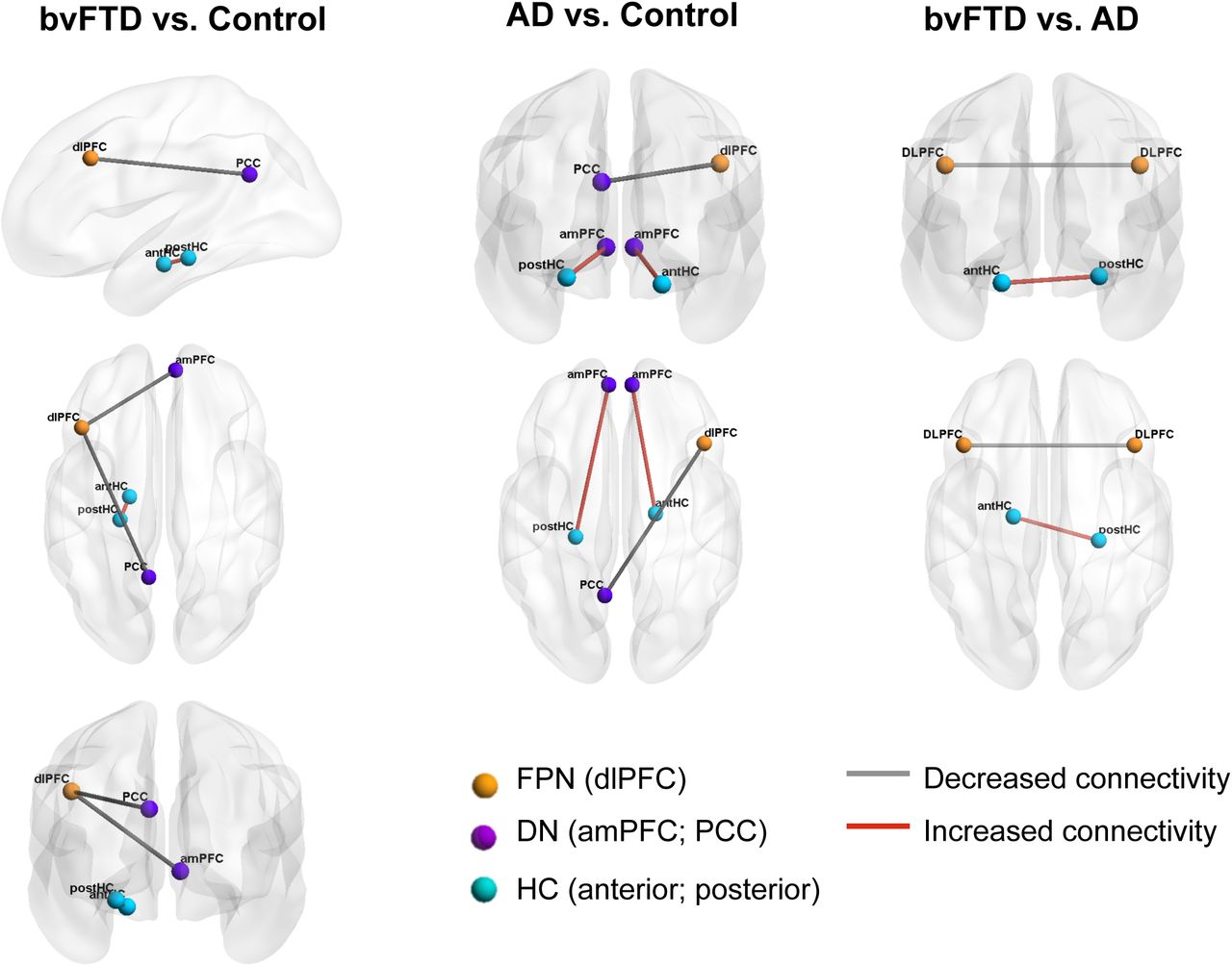Hippocampal atrophy and intrinsic brain network alterations