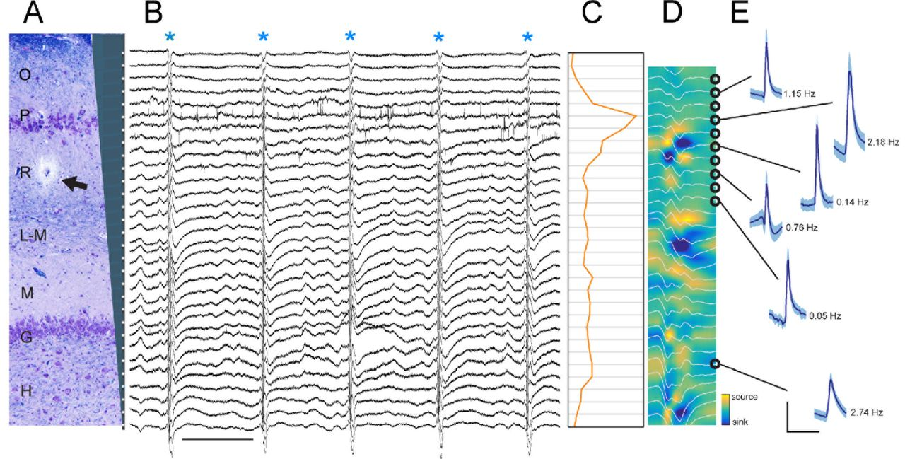 Electrophysiological Signature Reveals Laminar Structure of
