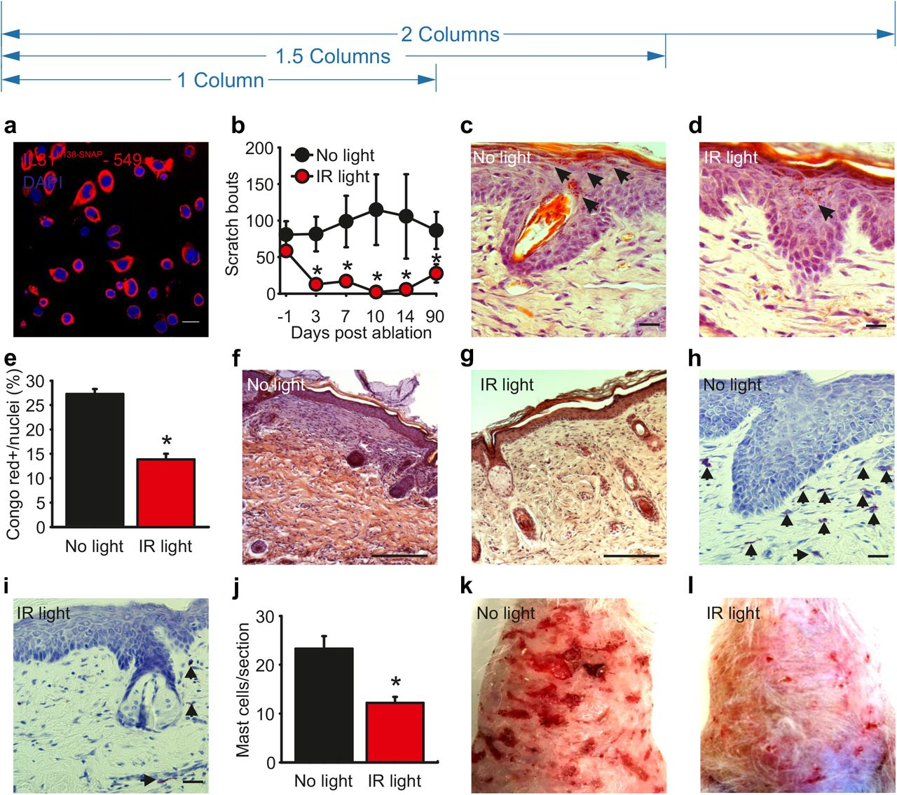 Molecule guided laser ablation as a novel therapeutic strategy to