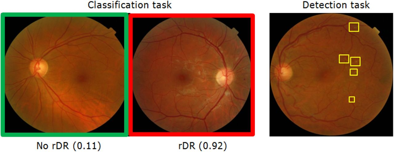 Diabetic Retinopathy detection through integration of Deep Learning