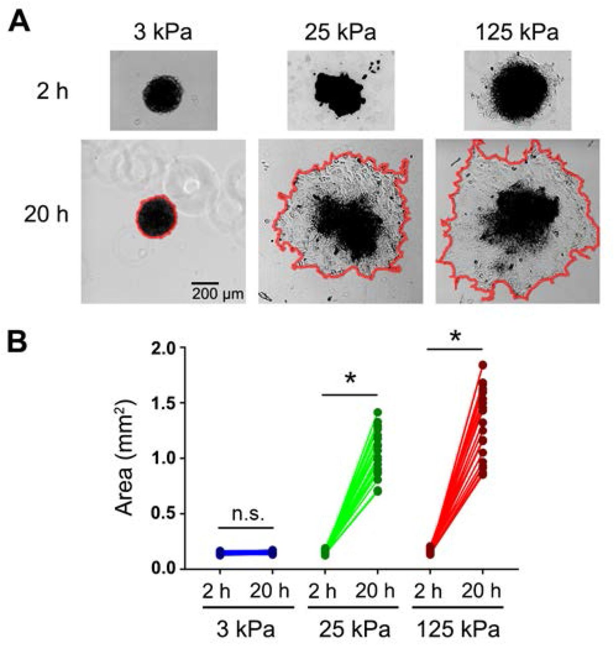 The mechanical microenvironment regulates ovarian cancer