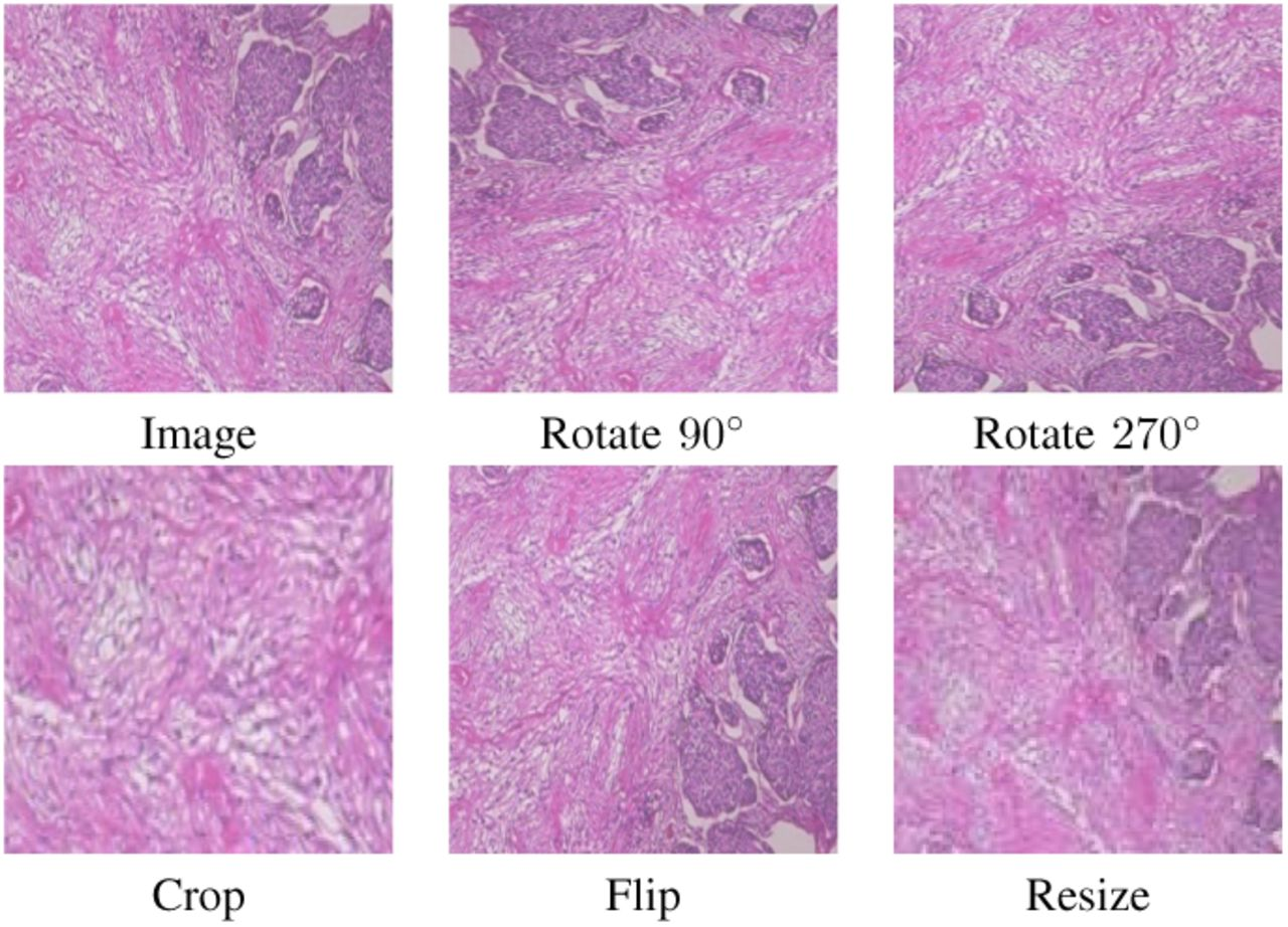 Breast Cancer Histopathological Image Classification: A Deep