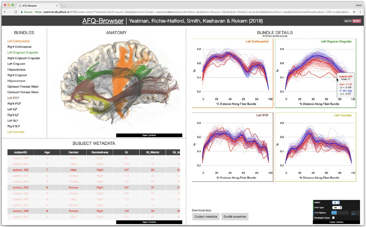 AFQ-Browser: Supporting reproducible human neuroscience research