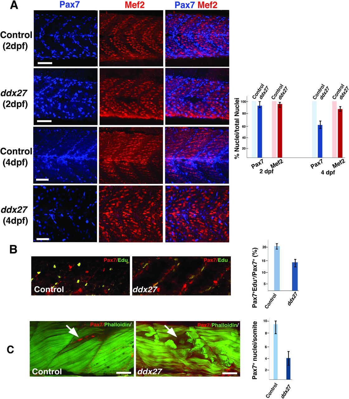 RNA helicase, DDX27 regulates skeletal muscle growth and