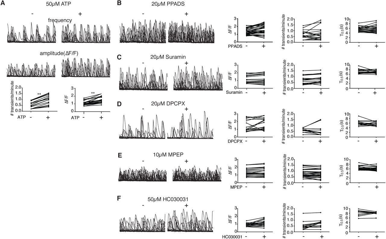 Aberrant calcium signaling in astrocytes inhibits neuronal