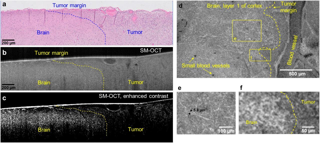 High-resolution wide-field human brain tumor margin