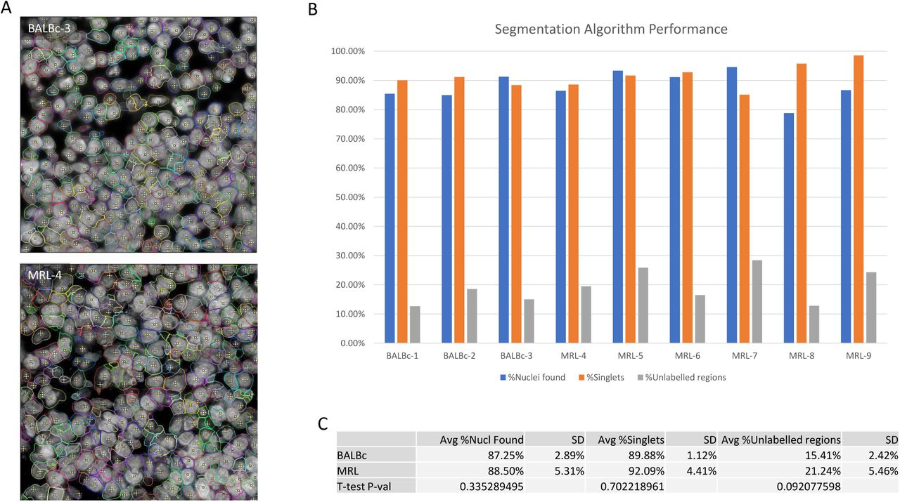 Deep profiling of mouse splenic architecture with CODEX