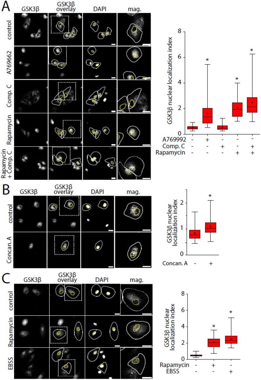 mTORC1 controls glycogen synthase kinase 3β nuclear