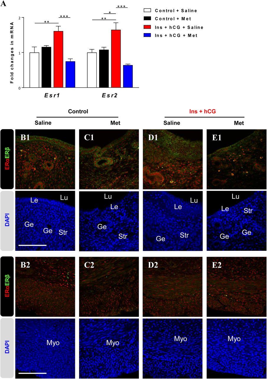 Uterine progesterone signaling is a target for metformin