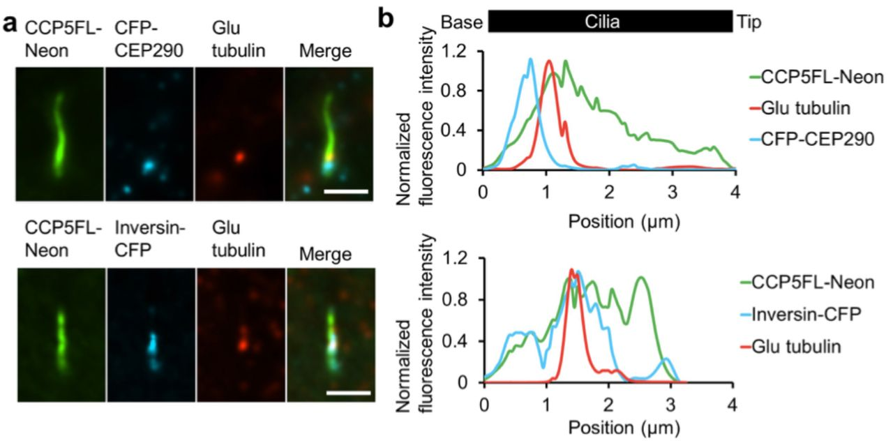 Spatiotemporal manipulation of ciliary glutamylation reveals