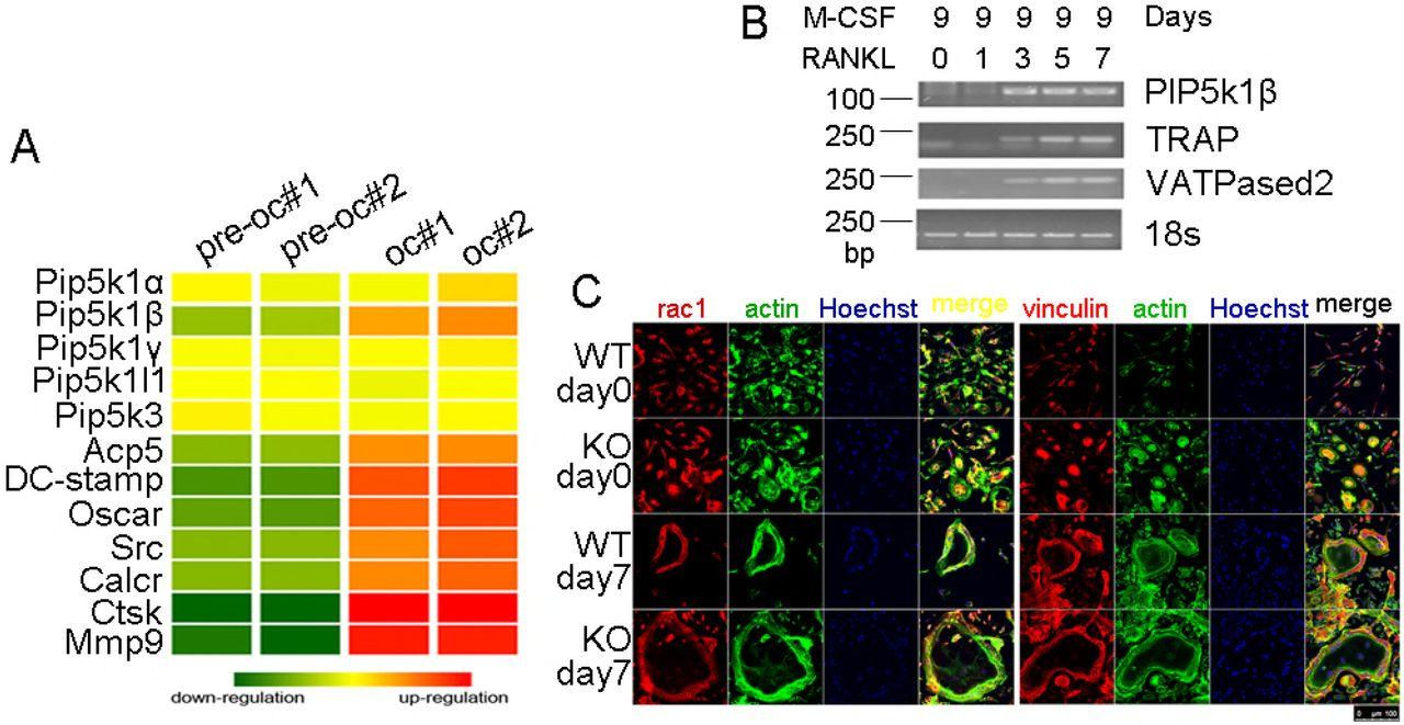 PIP5k1 β controls bone homeostasis through modulating both