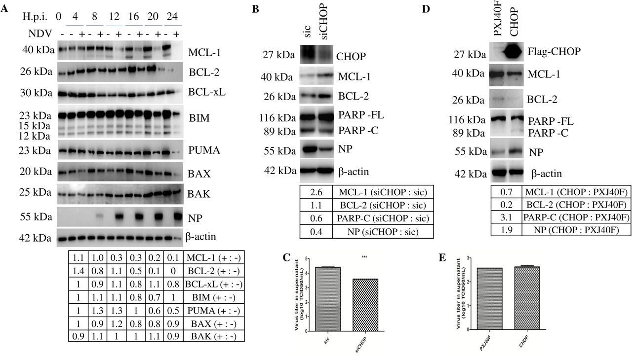 CHOP and IRE1α-XBP1/JNK signaling promote Newcastle Disease Virus