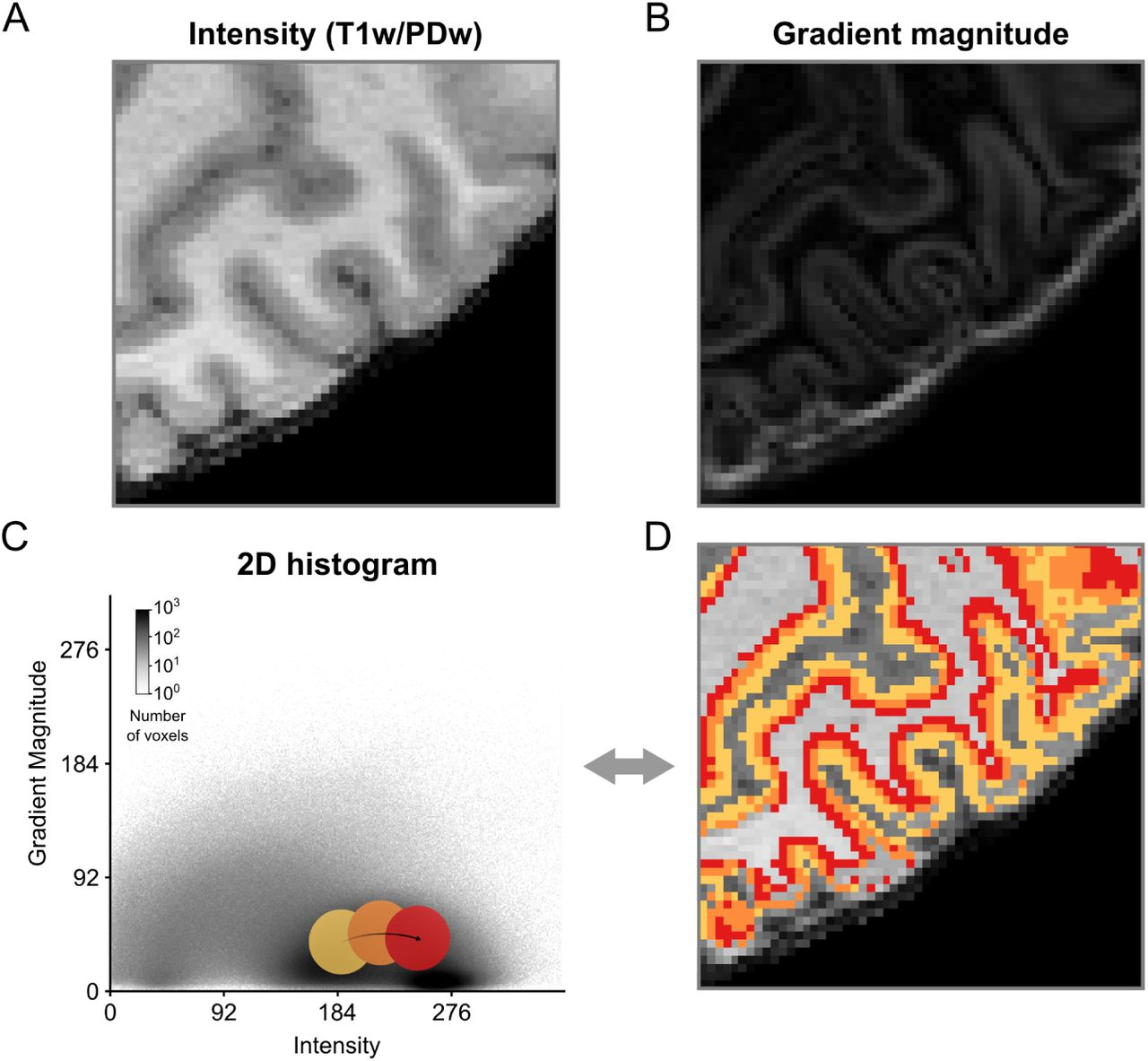 A scalable method to improve gray matter segmentation at
