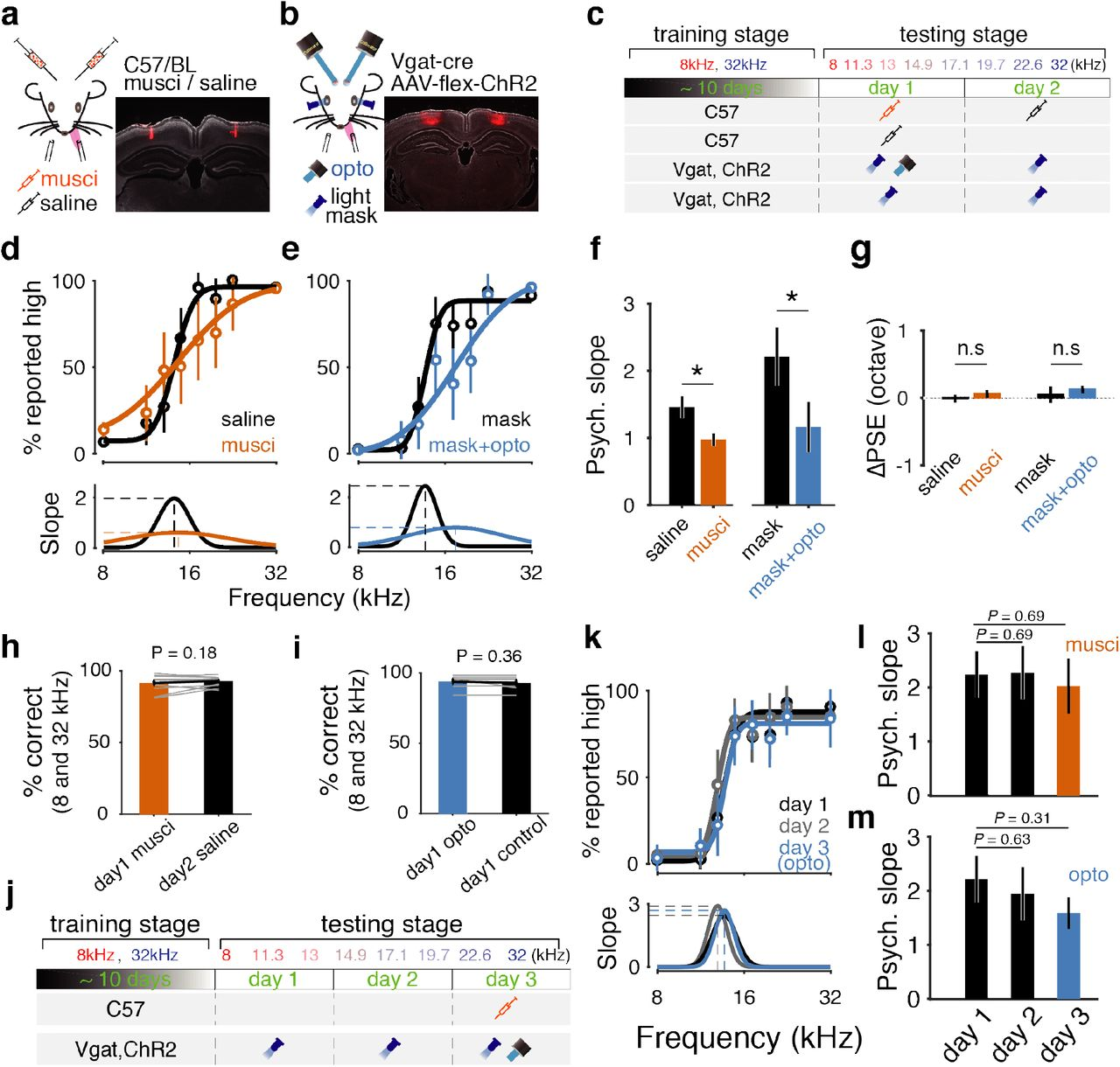 Dynamic and causal contribution of parietal cortex to