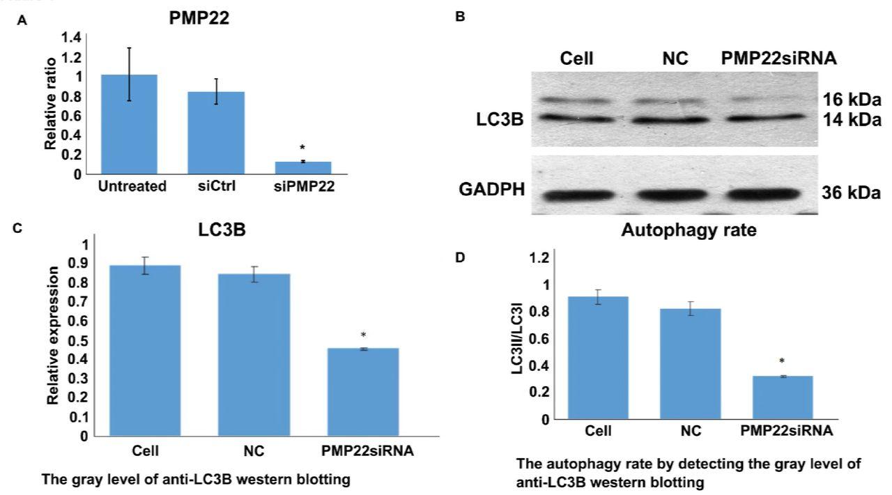 Enterovirus 71 structural viral protein 1 promotes mouse Schwann