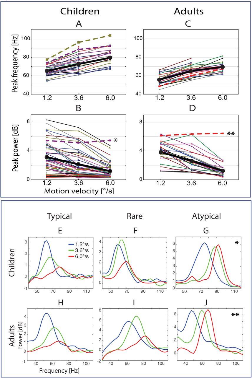 Input-dependent modulation of MEG gamma oscillations reflects gain