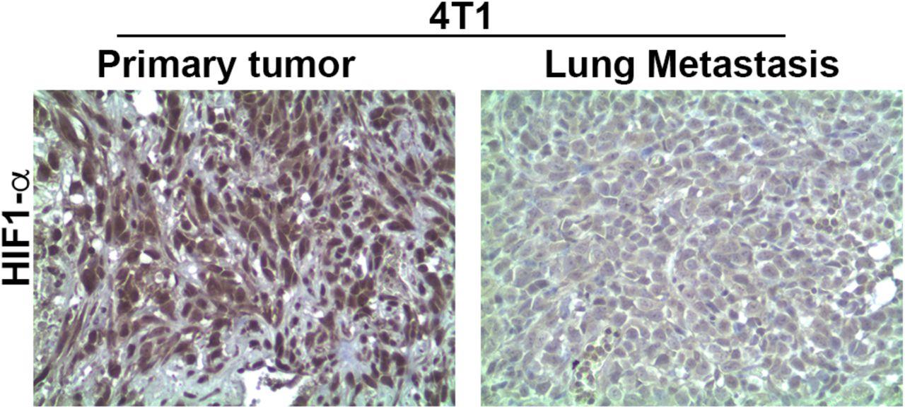 Вторичные опухоли в легких