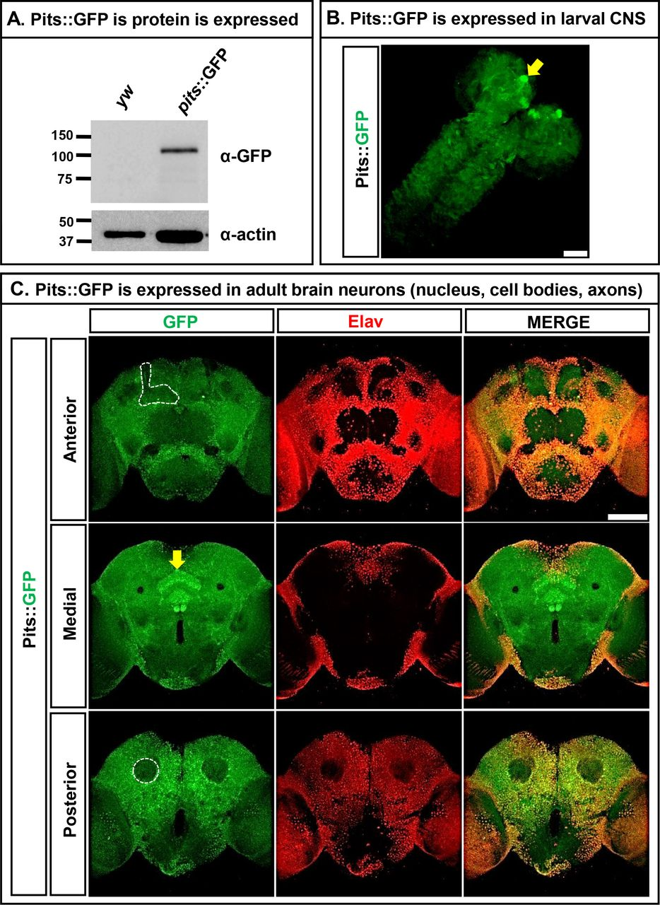 Loss-of-function in IRF2BPL is associated with neurological