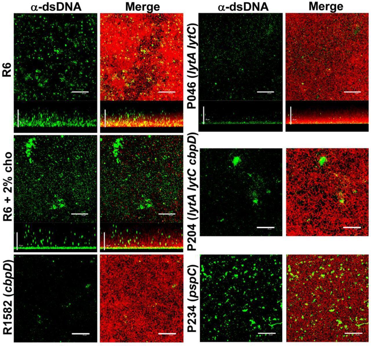 Autolysin-Independent DNA Release in Streptococcus pneumoniae in