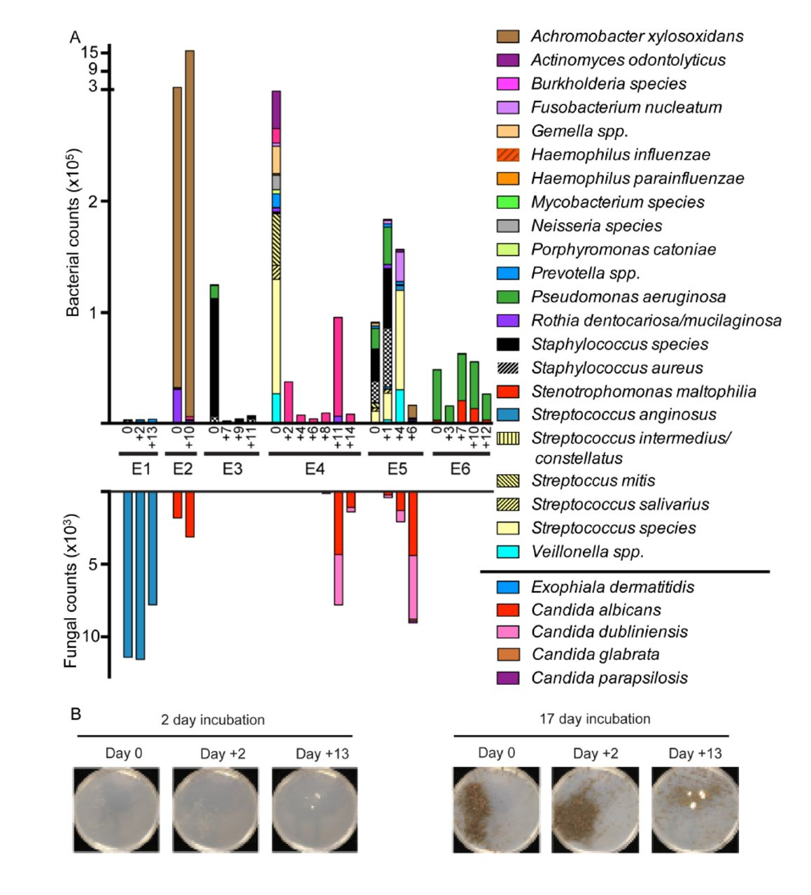 Profiling of bacterial and fungal microbial communities in