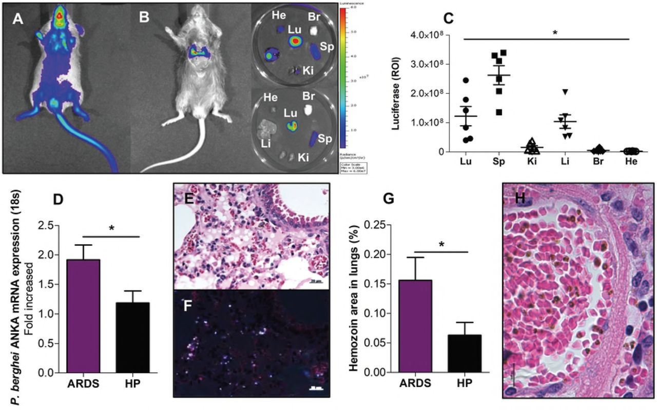 Critical contribution of endothelial protein C receptor in
