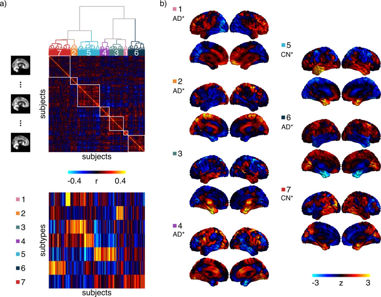 A signature of cognitive deficits and brain atrophy that is
