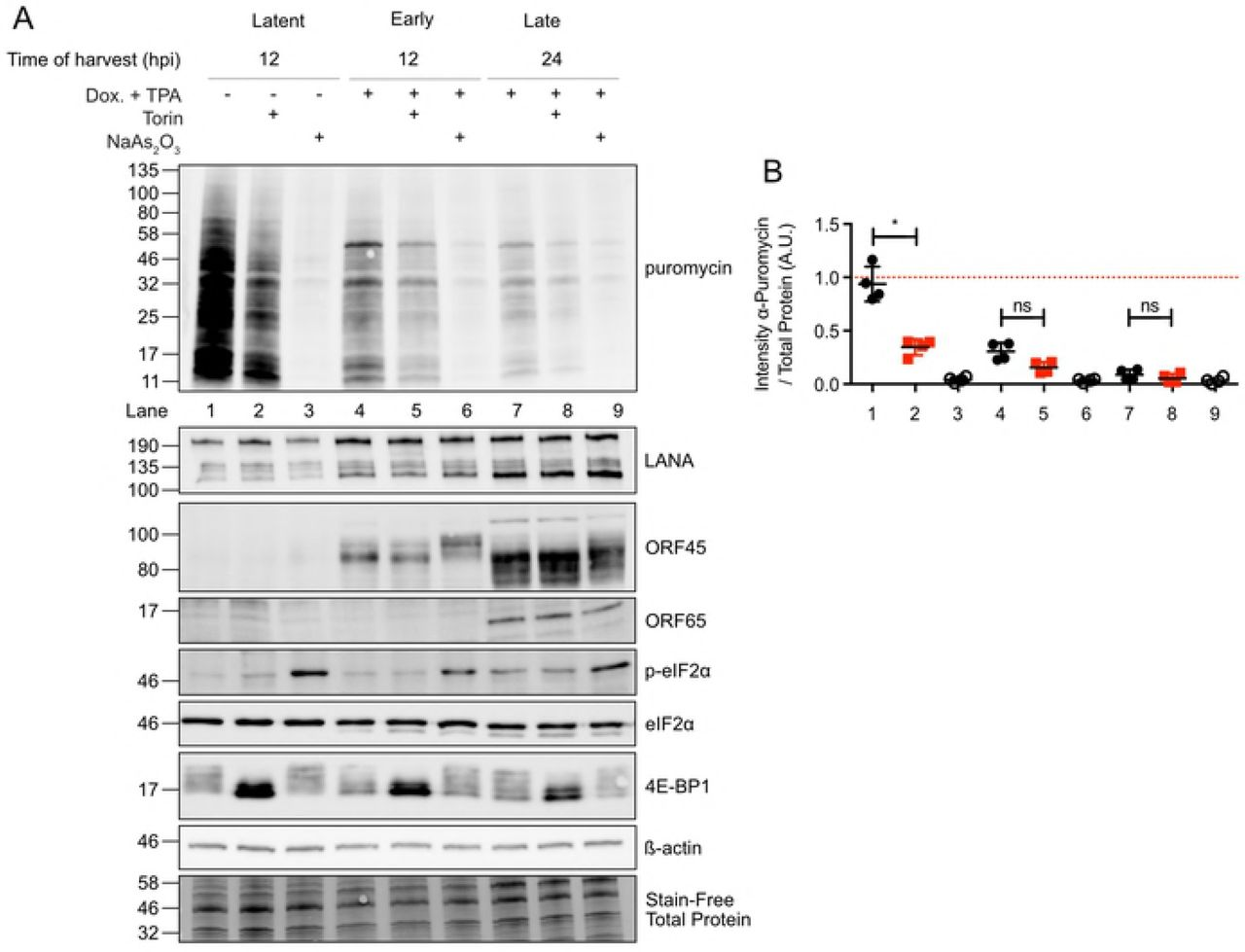 eIF4F disassembly does not deplete viral mRNAs from polysomes. (A) Polysome profile of TRex-BCBLl-RTA cells induced with 1 µg/mL dox for 24 h. Torin or DMSO control were added 2 h prior to harvest and polysome analysis. (B) qRT-PCR analysis of cellular and viral transcripts in polysome fractions. Total RNA was isolated from polysome fractions. RNA was co-precipitated with GlycoBlue and T7-transcribed luciferase RNA to improve and normalize for recovery. RNA was analysed by qRT-PCR for cellular, and viral transcripts. Vertical lines depict the boundaries between the monosomes, light polysome, and heavy polysome fractions (n= 3; means±SEM; statistical significance was determined by two-way ANOVA).