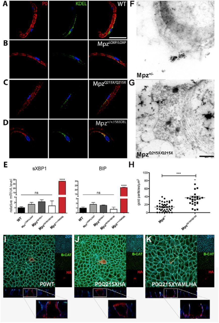 A nonsense mutation in Myelin Protein Zero causes congenital