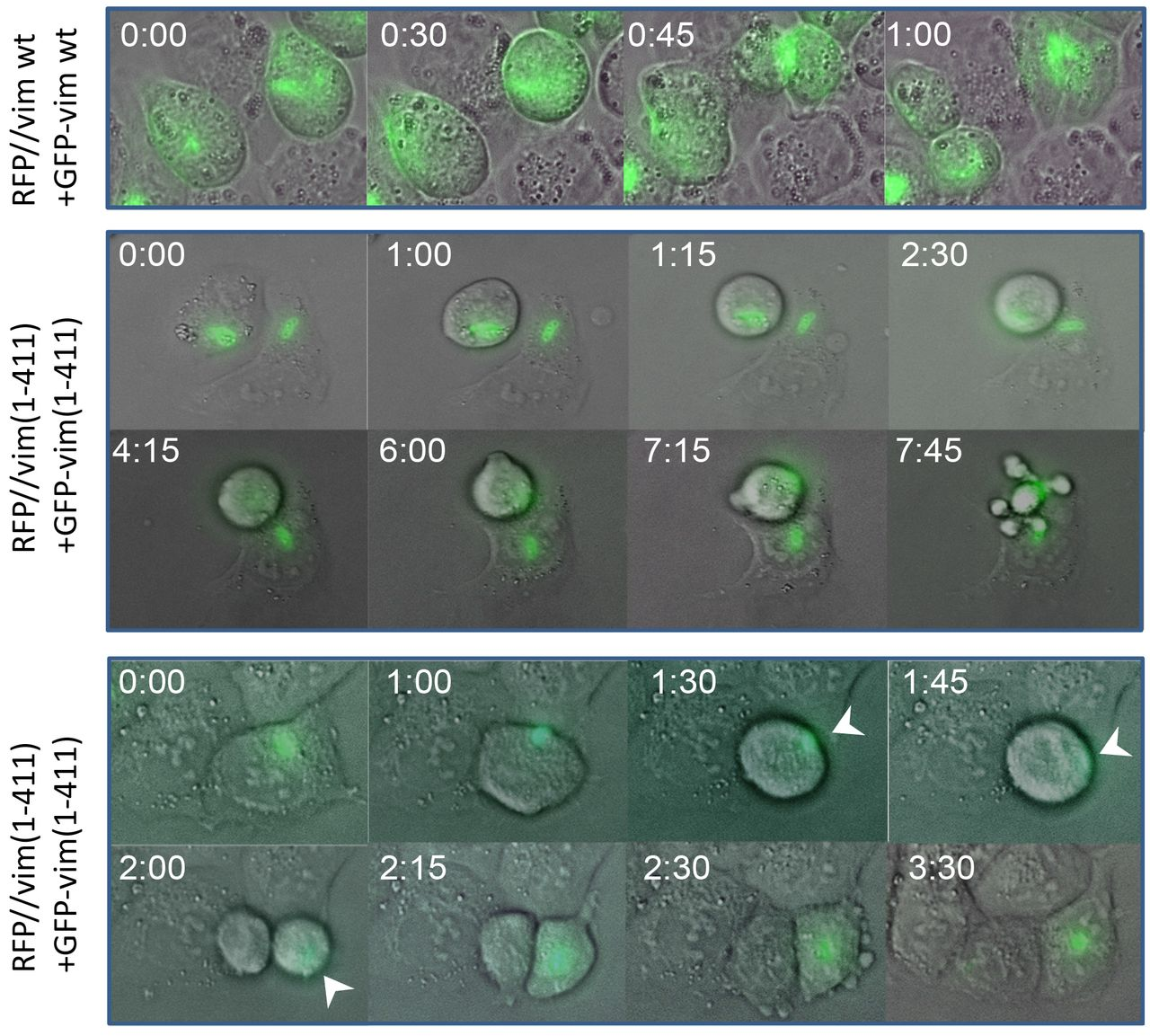 Vimentin filaments interact with the mitotic cortex allowing