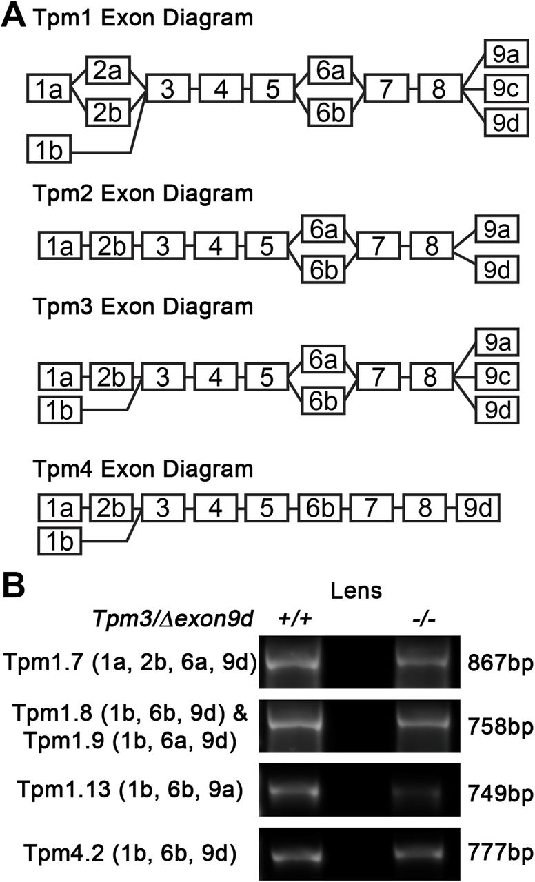 Tropomyosin 3 5 protects F-actin networks required for