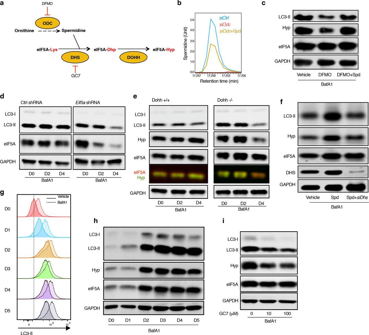 Translational control of TFEB and autophagy via eIF5A rejuvenates B